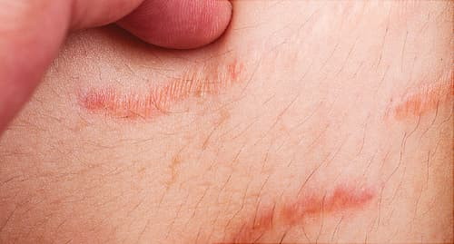 fingers by stretch marks close up