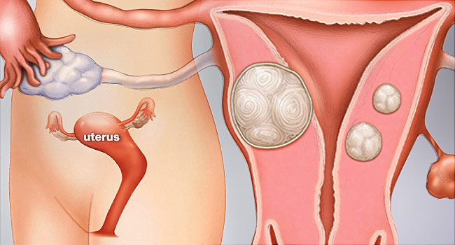 Uterine Fibroid Pictures: Anatomy Diagrams, Pictures of