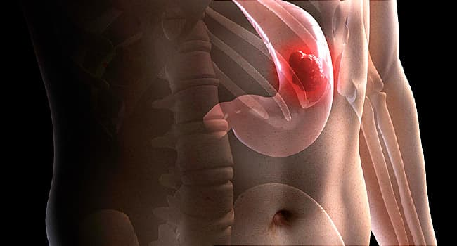 Pictures: Guide to Stomach Cancer