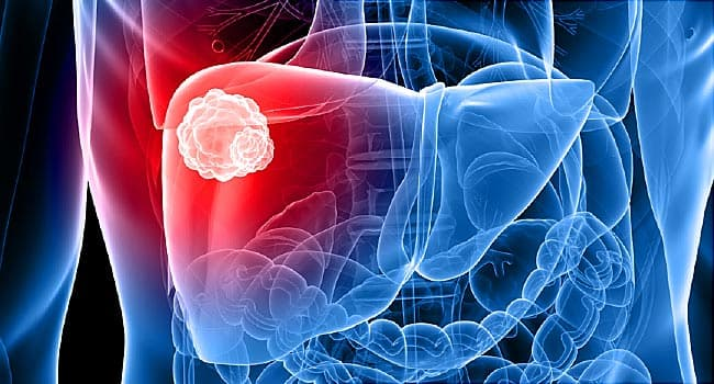 Things That Can Go Wrong with Your Liver & What To Do About It