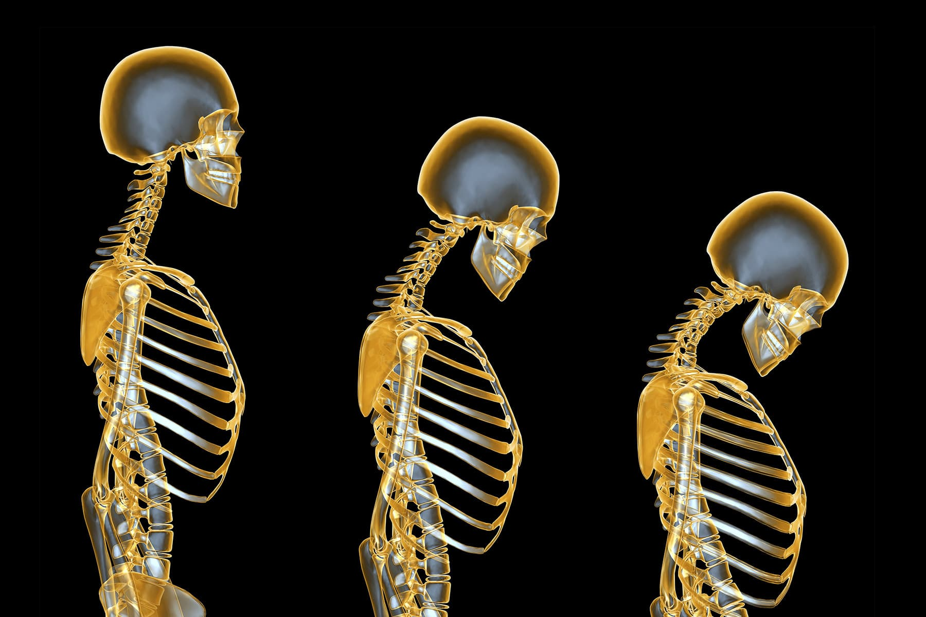 Pictures of Osteoporosis