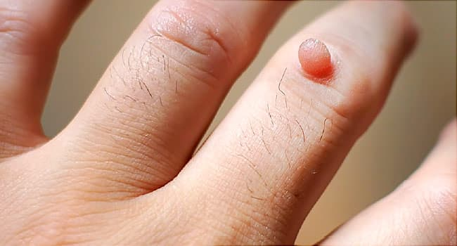 Warts on hands and feet causes