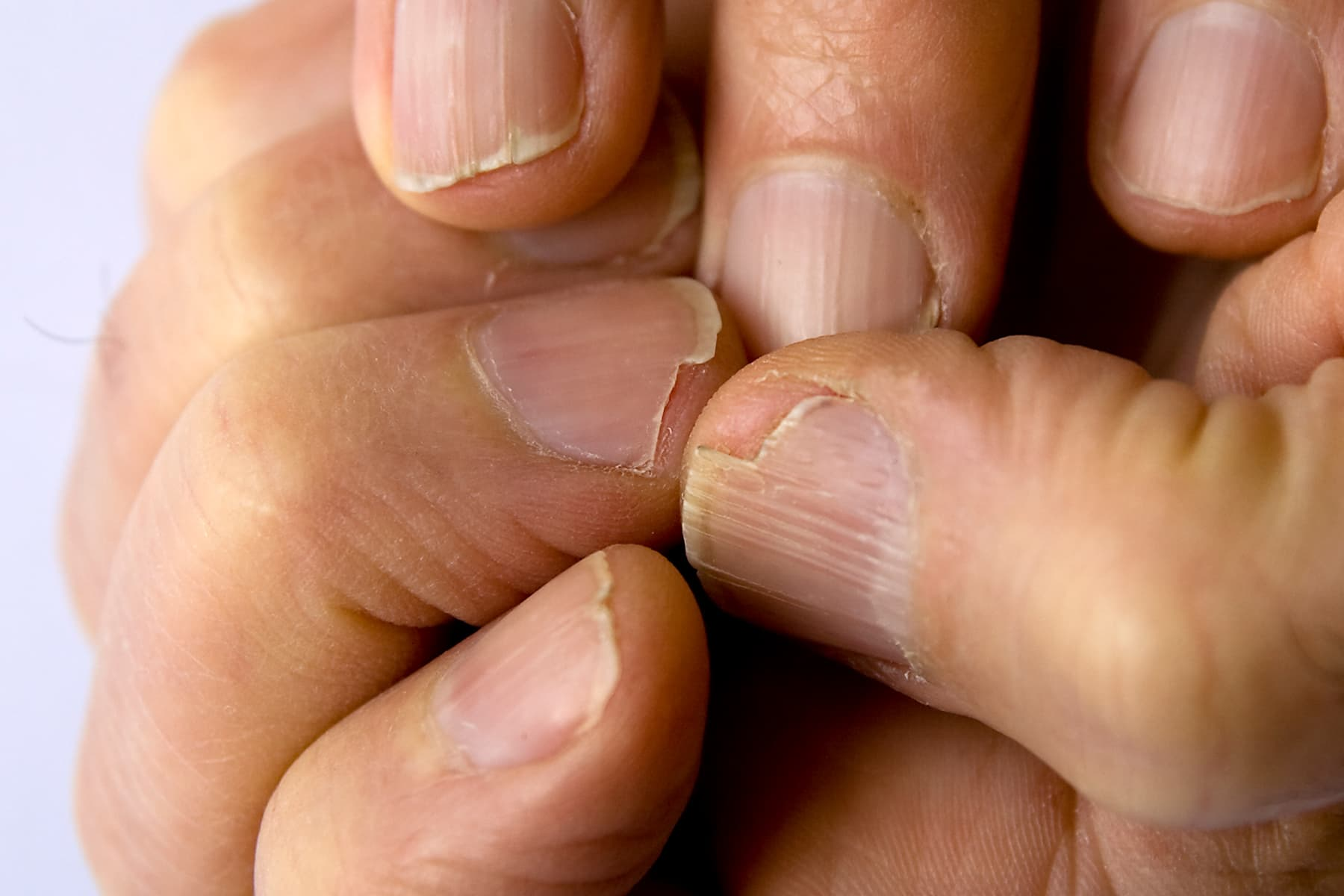 Pictures of What Causes Brittle Nails and How to Care for Them