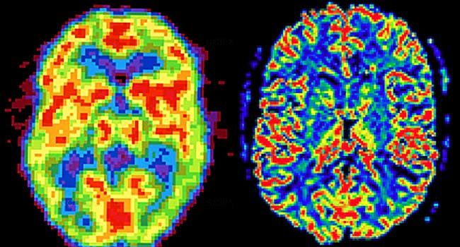 Pictures of Body and Brain Changes When You Sleep