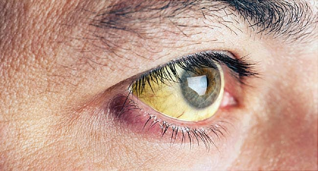 Pictures: What Your Eyes Say About Your Health