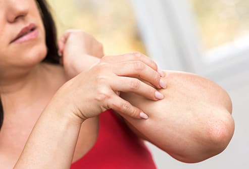 woman scratching  forearm