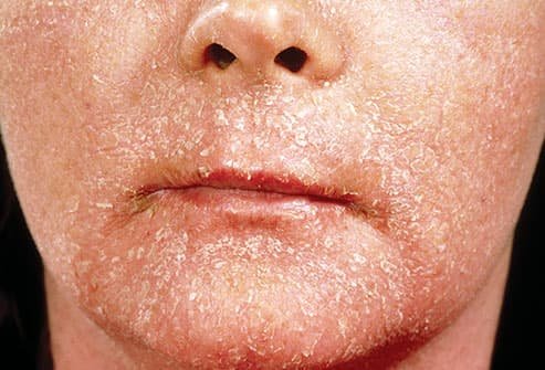 contact dermatitis on face