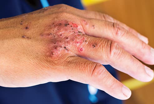mans infected hand