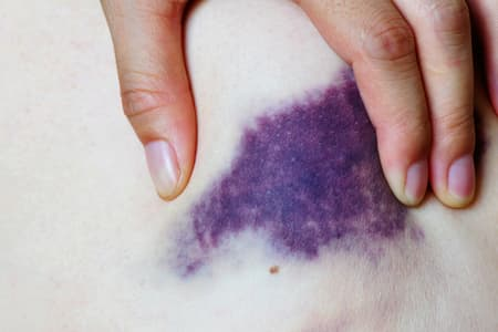Pictures Of Bruises What The Black And Blue Is Telling You