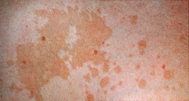 Why Is My Skin Blotchy? Pictures of Rosacea, Hives