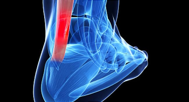 Ankle Sprain / Ankle Strain: Causes, Symptoms And Treatment - AIRROSTI