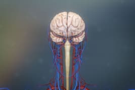 photo of brain aneurysm