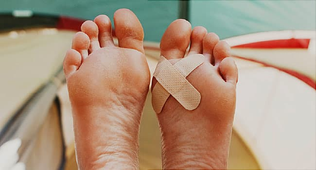 The Basics: Should You Pop a Blister?
