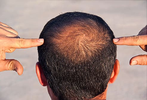 Care for thinning hair tricks guys can use for thicker looking locks the basics mens hair loss pmusecretfo Choice Image