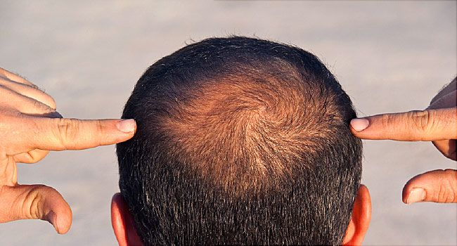 Mens Hair Loss Video Causes Treatments And Prevention