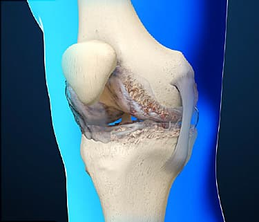 osteoarthritis video: causes and treatments of joint pain, Skeleton
