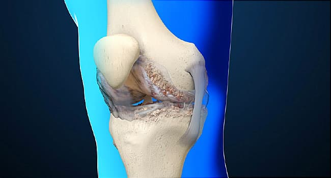 Causes and Treatments of Osteoarthritis