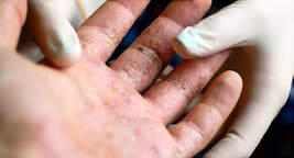 connection between psoriasis and other diseases