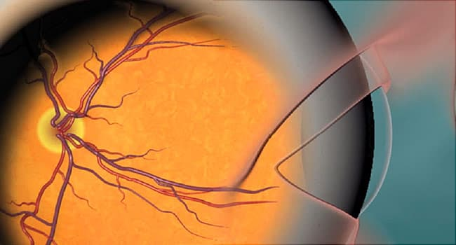 An Up-Close Look at Your Eye