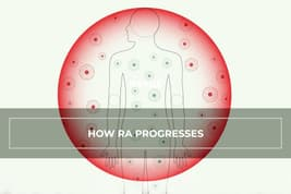 funded explainer ra how ra progresses video