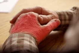 inflamed joints in hand