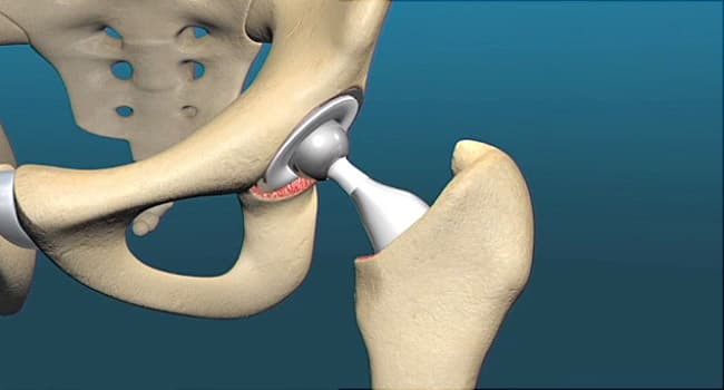 hip replacement graphic illustration
