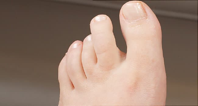 First Aid - How to Treat Ingrown Toenails