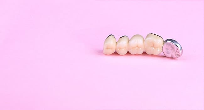 Dental Bridges: Benefits, Types, Cost
