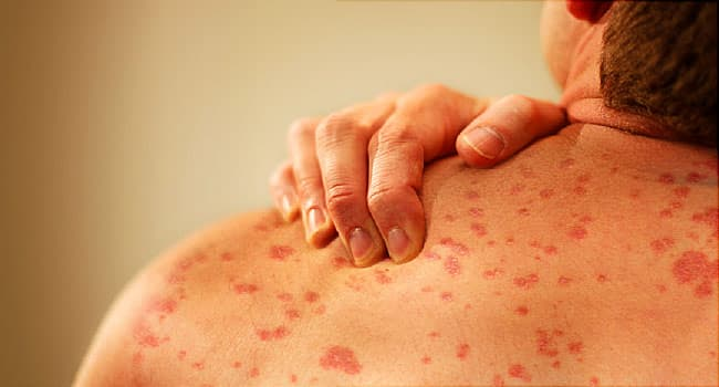 Hives Causes, Types, Diagnosis, Treatment