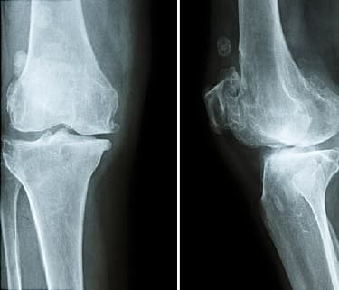 Video On Osteopenia Causes And Treatments