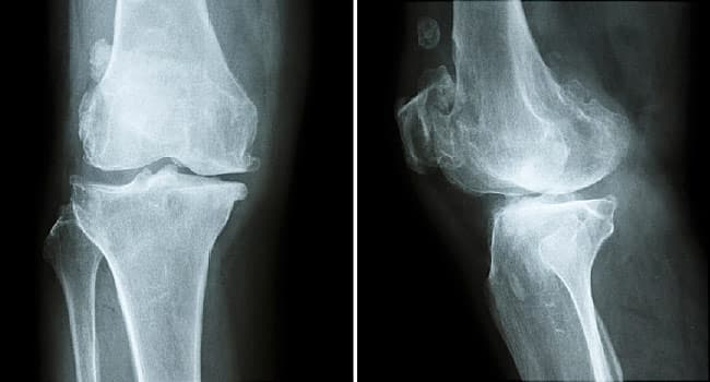 Osteopenia Causes and Treatments