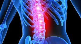 illustration of back with scoliosis