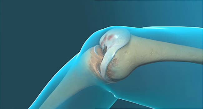 knee replacement graphic illustration