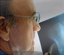 photo of doctor looking at X-ray