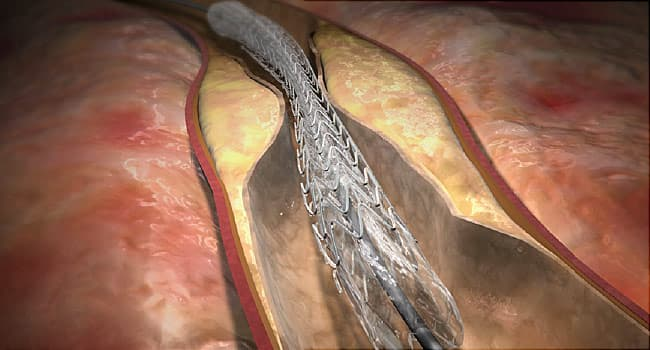 Coronary Angioplasty And Stenting