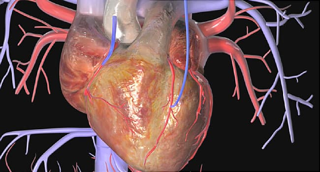 What Is Coronary Artery Bypass Surgery?