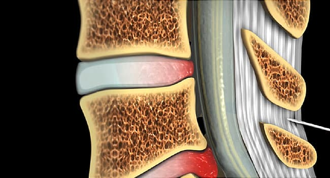 What Are Epidural Steroid Injections?