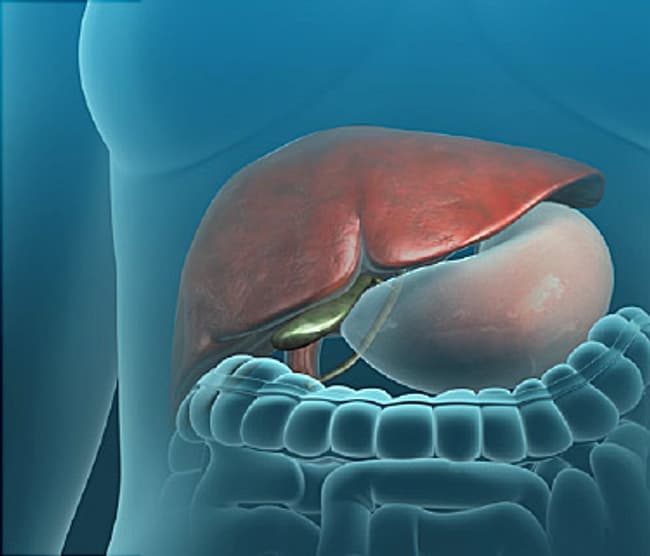 Gallbladder Video Gallstones And When You Need It Removed
