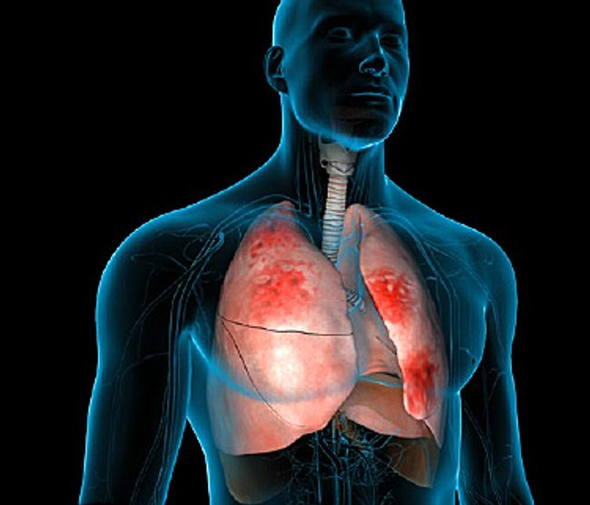 Pneumonia Video How Your Body Fights It Off