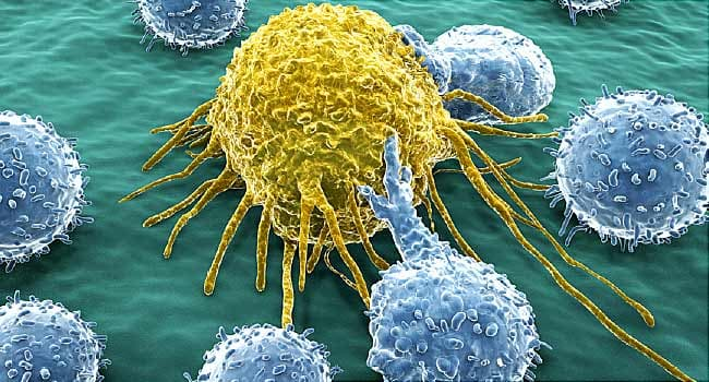 Urine Test Might Dictate Prostate Cancer Treatment