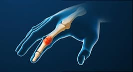 rhuematoid arthritis illustration
