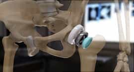 Rheumatoid Arthritis Video: Treatments for Stiff, Painful Joints