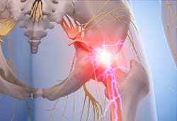 sciatica pain illustration