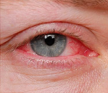 causes of conjunctivitis Conjunctivitis is a common condition that causes redness and inflammation of the thin layer of tissue that covers the front of the eye learn about its.