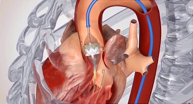 heart valve replacement illustration