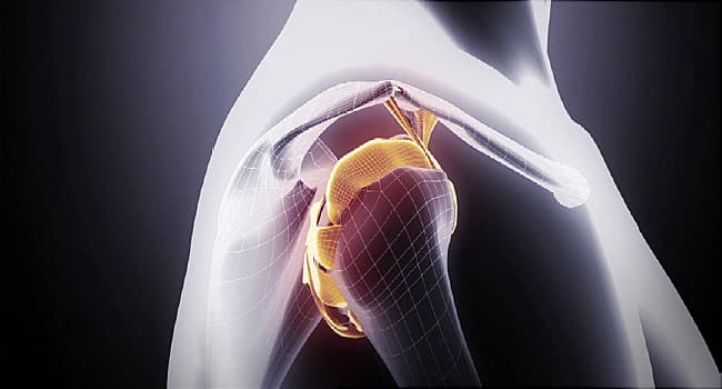 How to Heal a Dislocated Shoulder