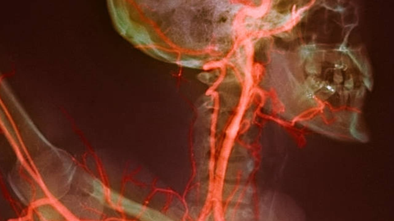 Carotid Artery Disease: Causes, Symptoms, Tests, and Treatment