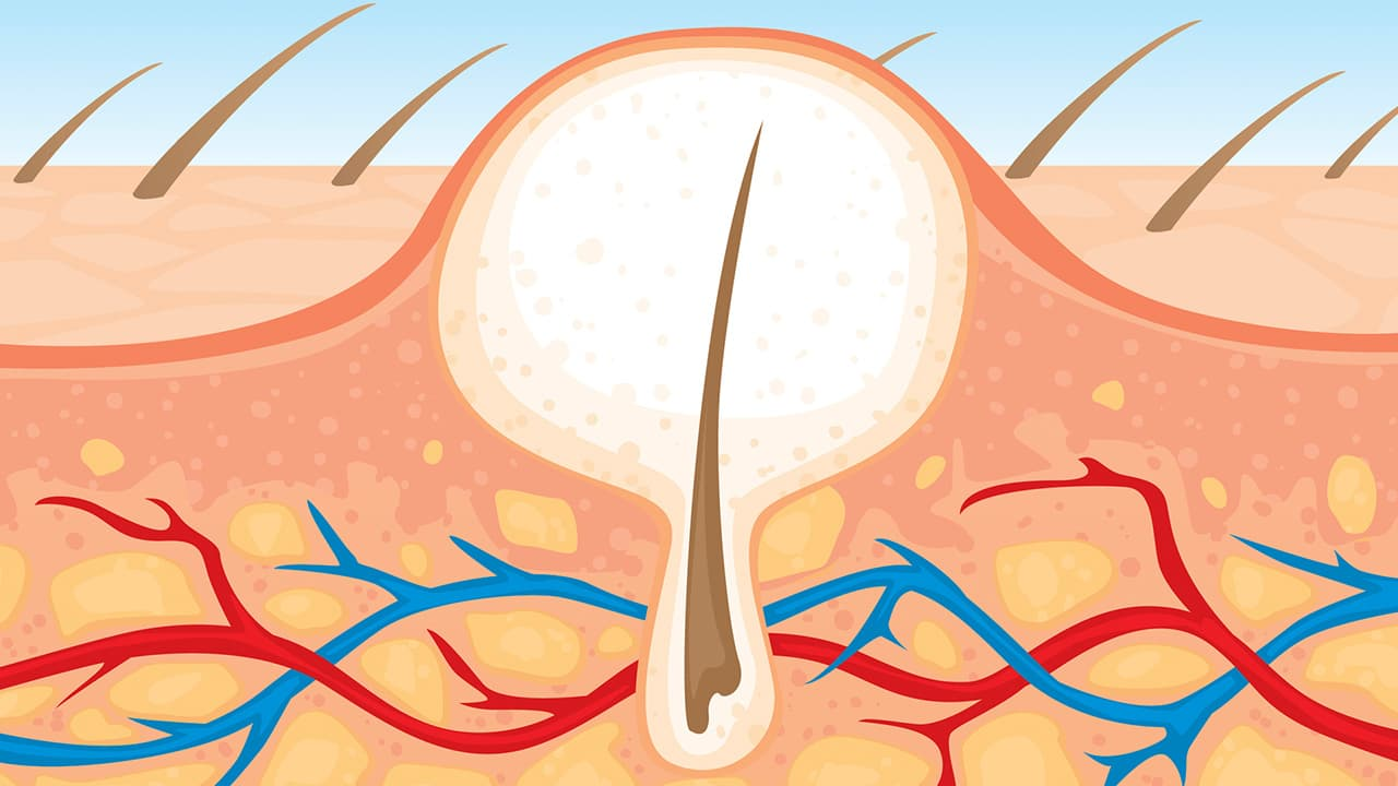 ingrown hair causes symptoms treatments infections