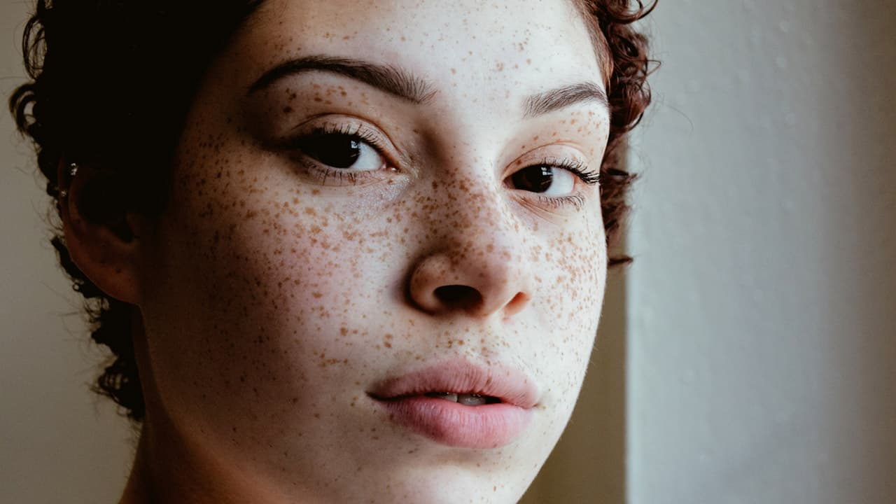 Freckle on nose meaning