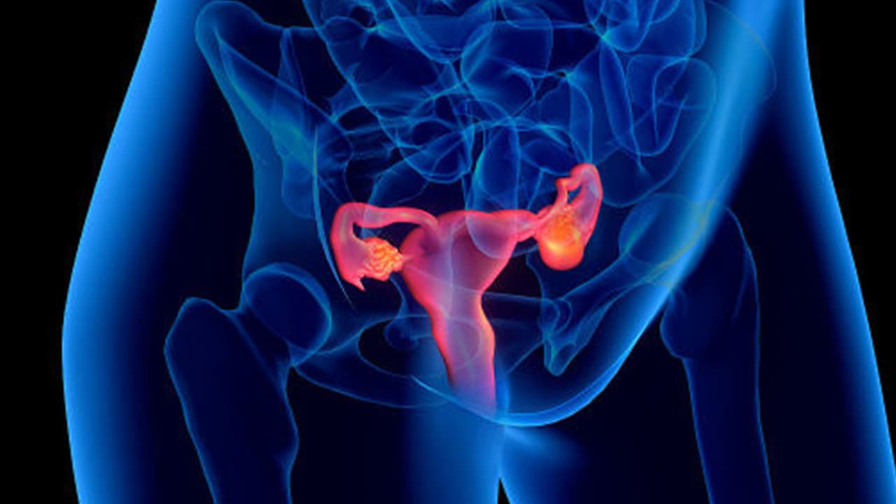 Ovarian Pain: Possible Causes, Diagnosis, and Treatments